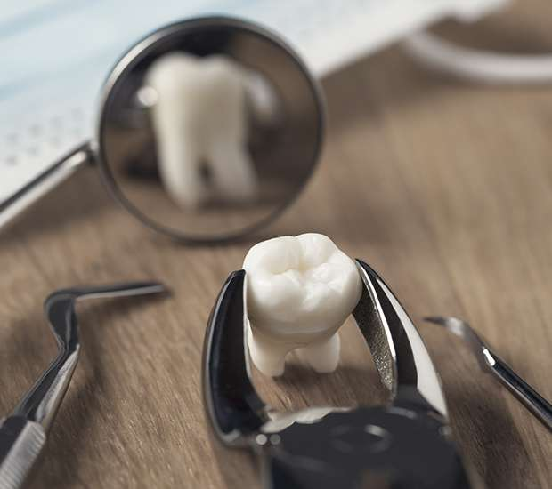 Chamblee When Is a Tooth Extraction Necessary